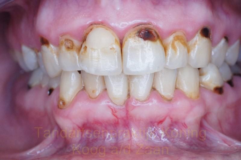 Tandartsenpraktijk Koning | Koog aan de Zaan